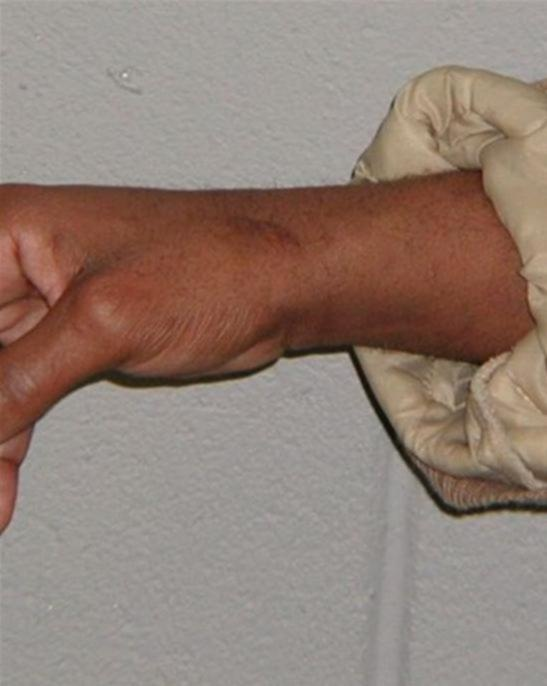 Photograph taken in 2002 - Scar on wrist