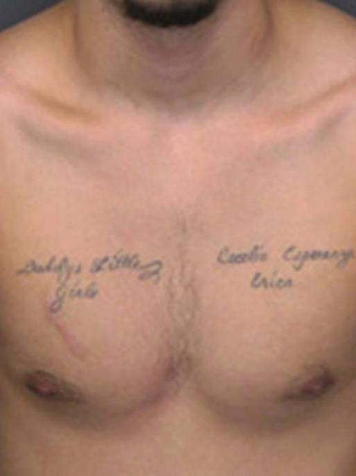Tattoos and scar on chest