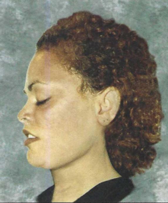 Likeness of Victim